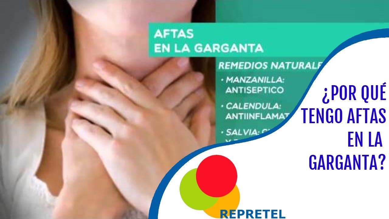 Conozca Qué Origina Las Aftas En La Garganta Salud Youtube
