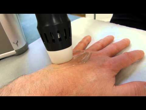 Shock wave therapy to the hand second session (Enraf Nonius 811)