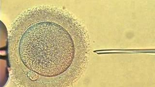 intracytoplasmic sperm injection of human egg