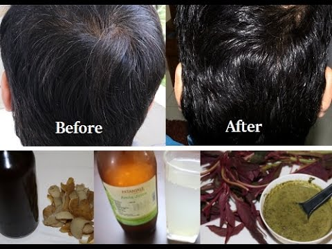 Magical Remedies to Change White Hair to Black Permanently in 30 Days Naturally