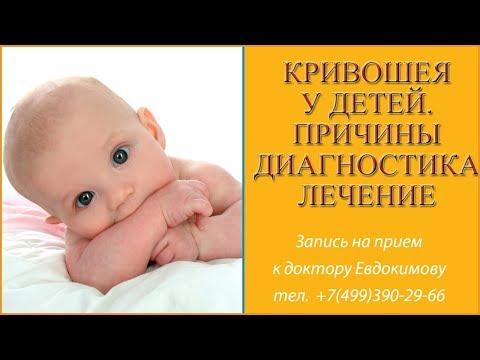 Кривошея у детей. Признаки и симптомы кривошеи. Лечение кривошеи остеопатией Отзывы доктор Евдокимов