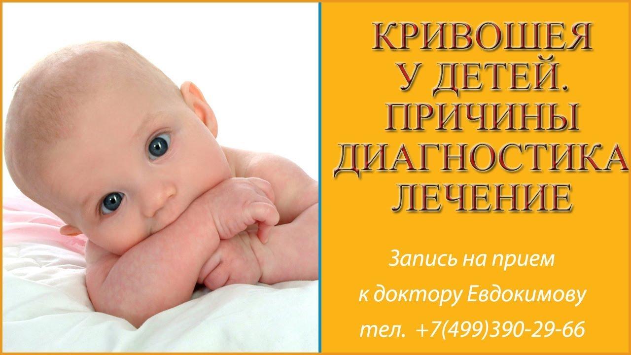 Патология у новорожденных врождённая мышечная кривошея. Если вы не обнаружили вышеперечисленных признаков вмк, но малыш любит.
