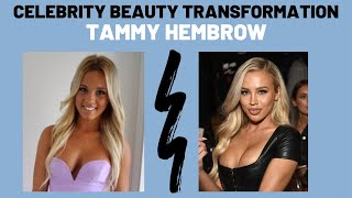 Tammy Hembrow Beauty Procedure Transformation (Rhinoplasty, Lip Filler, Chin Liposuction, Botox)