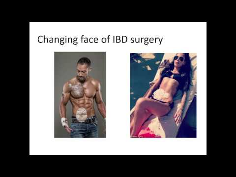 'New treatments and Research in IBD' - IBD Information Forum Video