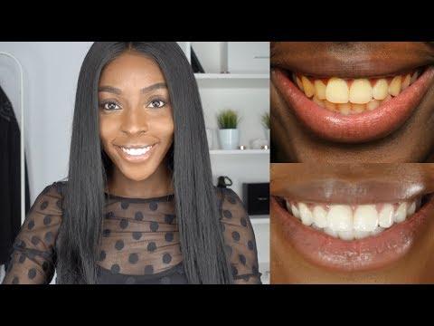 Whiten Teeth at Home   DIY Teeth Whitening Kit GIVEAWAY