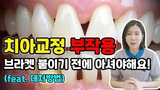 치아교정 부작용... 한두개가 아닙니다