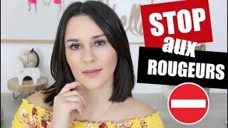 STOP AUX ROUGEURS / COUPEROSE (conseils et astuces) | COMMENT LES FAIRE DISPARAITRE !