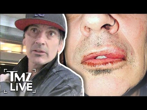 Tommy Lee Attacked By Son! | TMZ Live