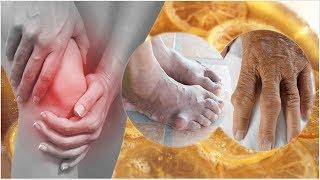 Uric acid, भयंकर जोड़ दर्द का सफल एवं अचूक इलाज || Rudra Hme Remedies