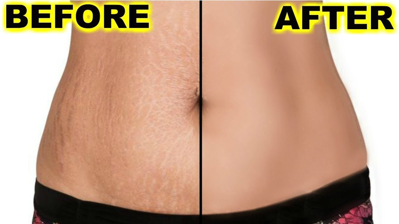 how to get rid of stretch marks on belly