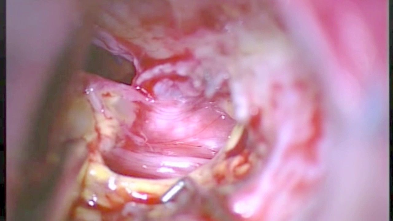 Internal Auditory Meatus dissection for removal of a Vestibular ...