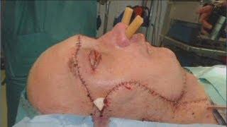Un arriesgado transplante de cara realizado en un tiempo récord de tres meses