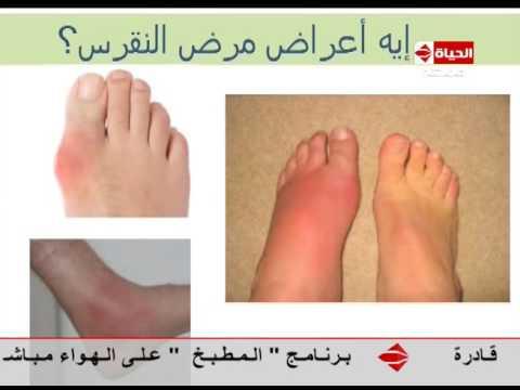 العيادة د حاتم العيشي أستاذ الروماتيزم ماهي أعراض مرض النقرص Youtube