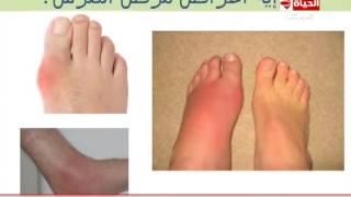 فيديو| أعراض مرض «النقرس»