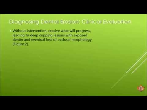 Oasis Dentist Resource: Dental Erosion: What is the etiology and diagnosis and how is it prevented?