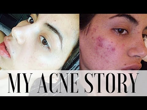 Beauty blogger reveals exactly how she banished her acne (and the before-and-after snaps are incredible)