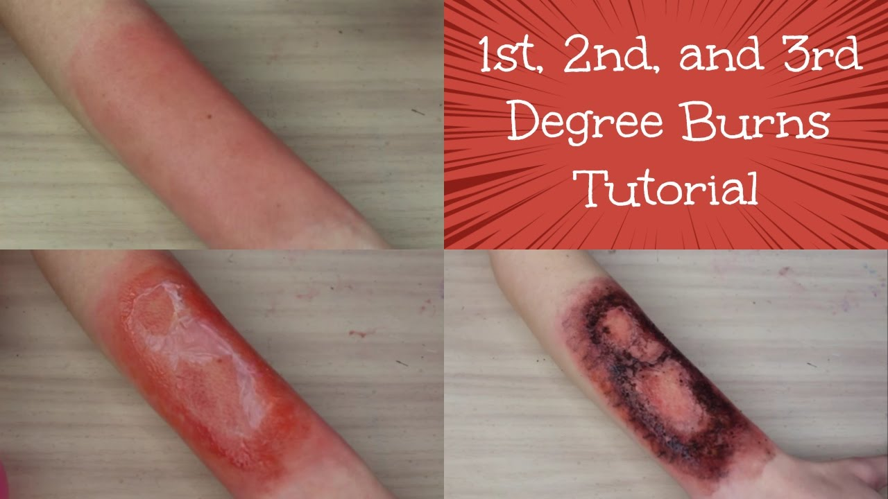 third degree burns essay Essays homeostasis: burn victim third degree burn affects the nerves where one might not feel as much pain as a first or second degree burn.