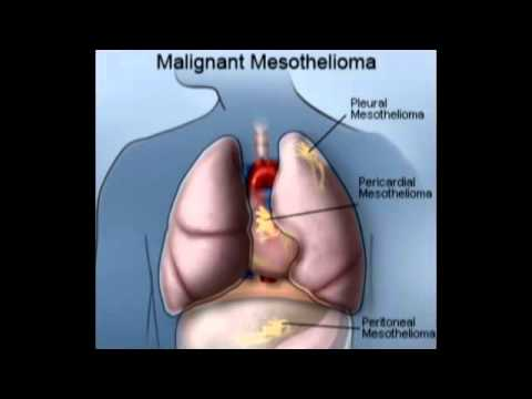 what-is-mesothelioma_high