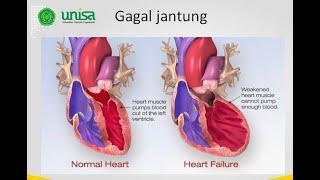Di video ini saya membahas mengenai patofisiologi dari serangan jantung mulai dari definisi, etiolog.