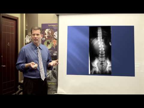 Dr. John Zielonka | Chiropractor Ottawa Ontario | The Doctor's Report