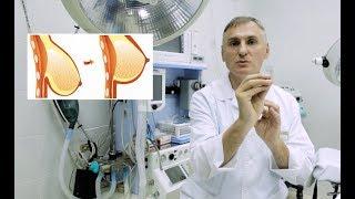 Подтяжка грудей | 5 Методов | Операция по увеличению грудей