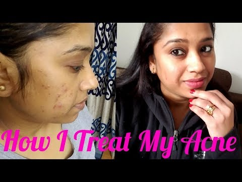 How To Get Rid of Multiple Pimples & Acne Scars Fast -- How I Treat My Acne With Tips In Hindi - 동영상