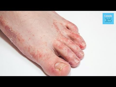 3 Foot Fungus Remedies for a Total Solution – Canada 365