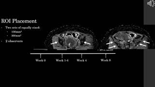 Jose Perucho - Intravoxel Incoherent Motion MRI Assessment of Chemoradiation Induced Changes