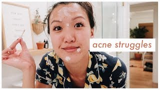 my-ongoing-acne-struggles-wahlietv-ep686