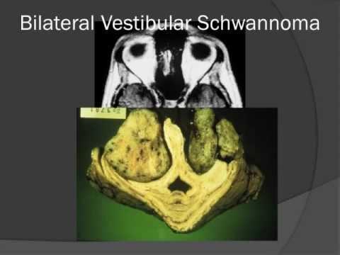 MedPix COW 647 - Neurofibromatosis Type 2, the MISME Syndrome