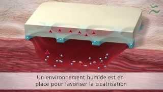 3D Animation - Wundauflagen/Pflaster (Paul Hartmann AG)