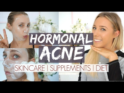 Hormonal Acne Update | Skincare + Supplements + Diet