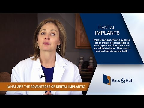 What Are the Advantages of Dental Implants? | Bass & Hall Dental Implant & Periodontal Partners