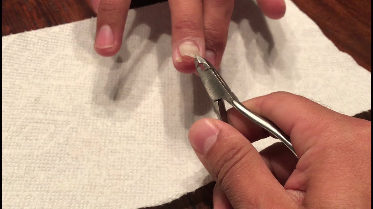 Finger nail gets ripped off! - YouTube