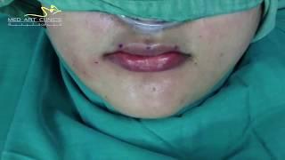 Fat Lip Augmentationتكبير الشفة باستخدام الدهون