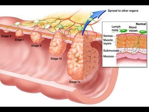 cancer de colon fisiopatologia