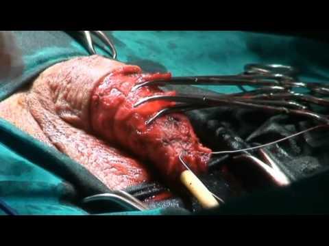 Glansectomy with tunica vaginalis as a graft/Βαλανεκτομή με ιδίως ελυτροειδή σαν μόσχευμα