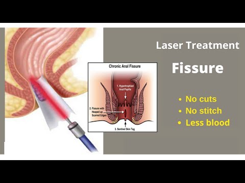 Laser Treatment for Fissures at Laser Piles Clinic in Hyderabad