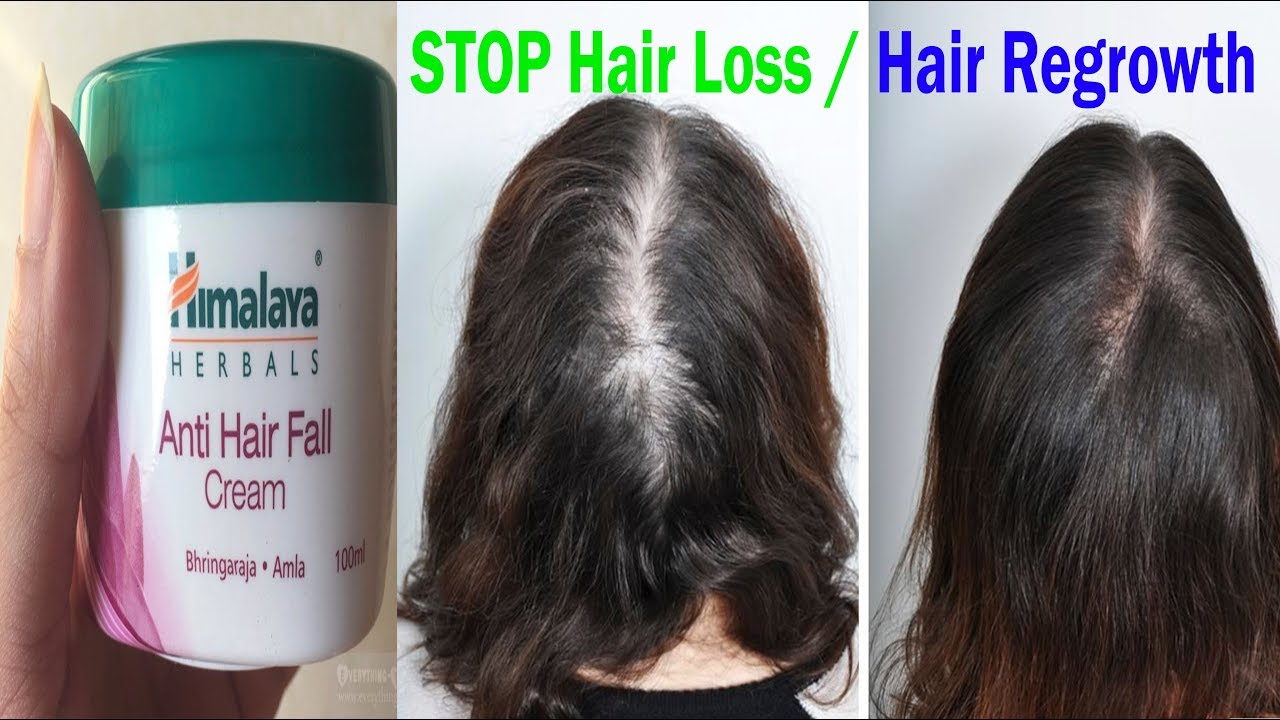 Is The Himalaya Anti Hair Fall Cream The Best Product To Stop Hair