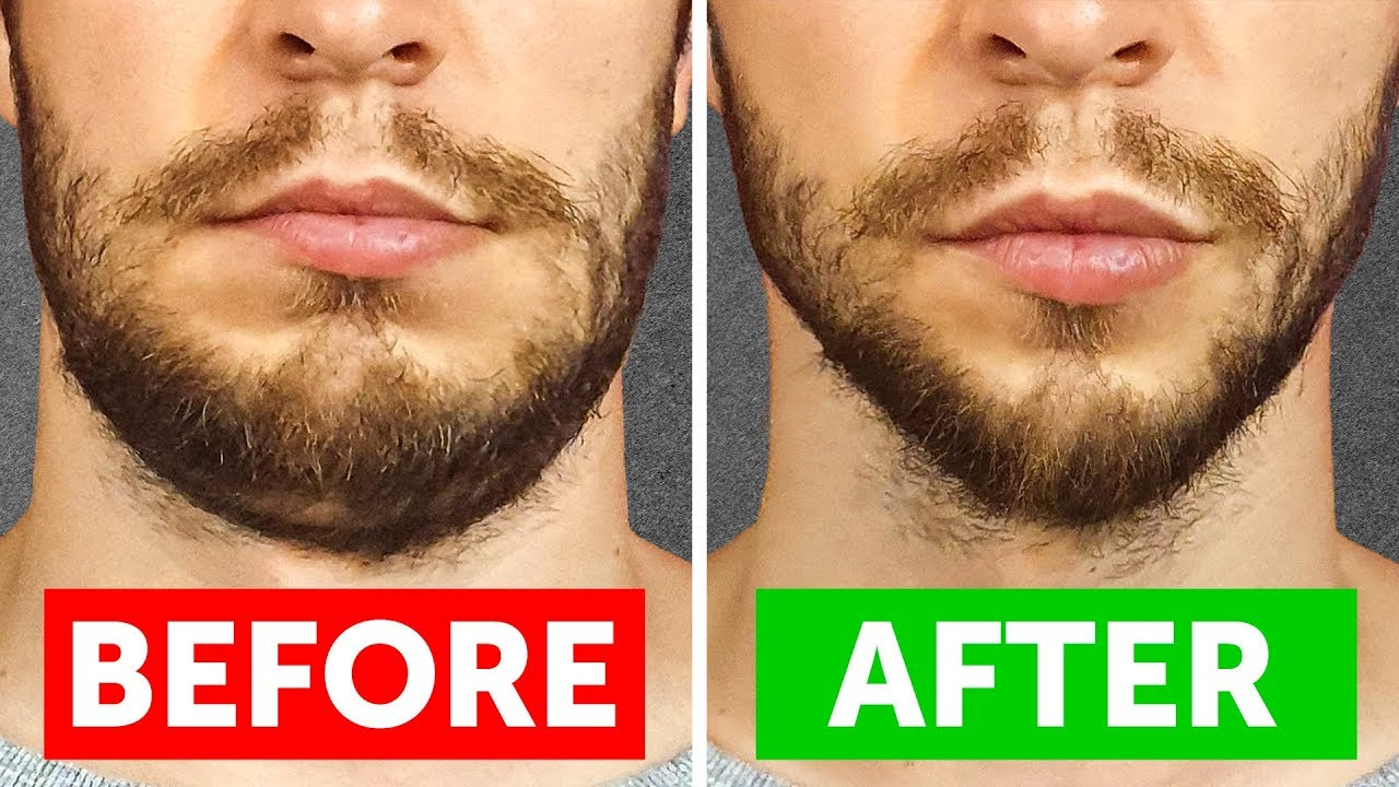 8-Min Workout to Lose Chubby Cheeks & Get Stronger Jawline