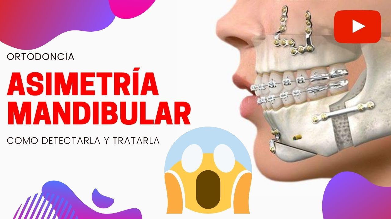 ASIMETRÍA FACIAL TIPS PARA DETECTARLA Y TRATAMIENTOS DISPONIBLES