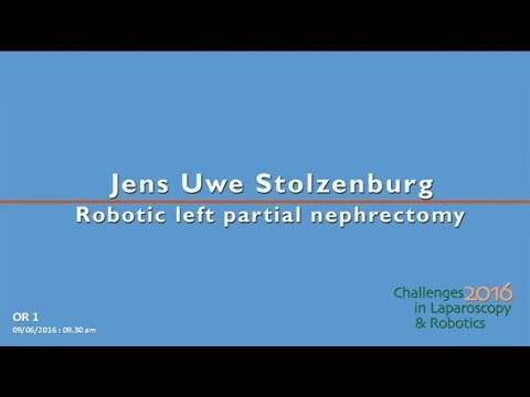 CILR 2016 - Jens-Uwe Stolzenburg - Robotic left partial nephrectomy