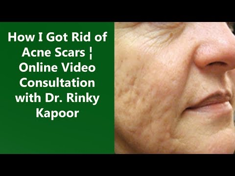 Online Doctor Consultation | Diagnosis & Treatment of Acne Scars | The Esthetic Clinic, India
