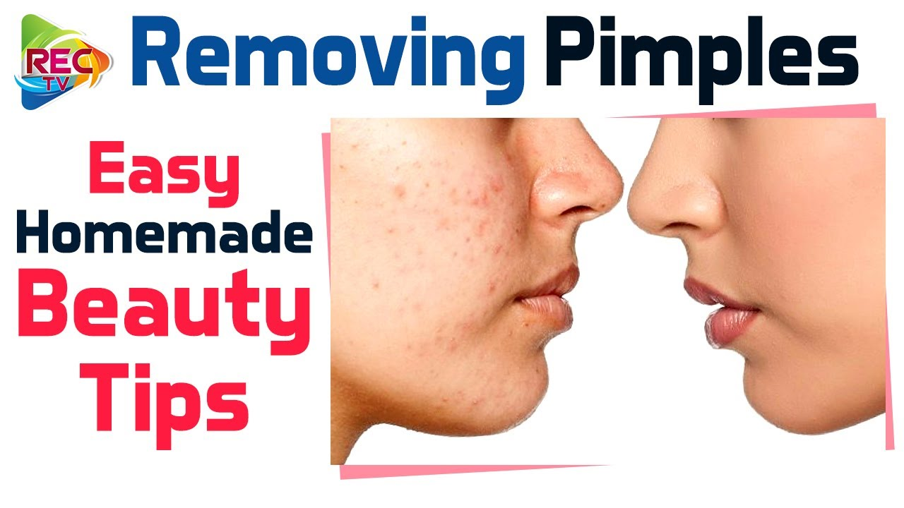 How To Remove Pimples Naturally  Surprising Home Remedies For Acne   Beauty Tips  RECTV INFO
