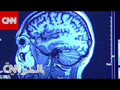 دراسة: المستويات العالية من التوتر يمكن أن تسبب تقلص دماغك  - نشر قبل 2 ساعة