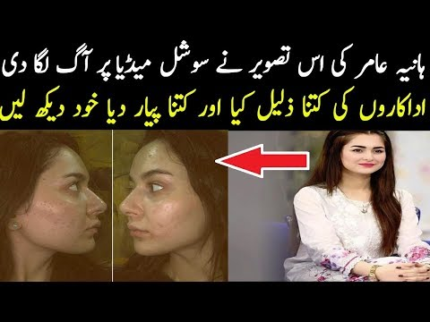 why-hania-amir-share-her-acne-pic-on-instagram-without-makeup- 
