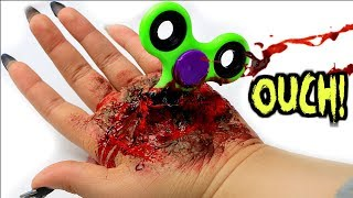 Makeup DIY Special FX Prank! Fidget Spinner Stuck In Hand Accident!