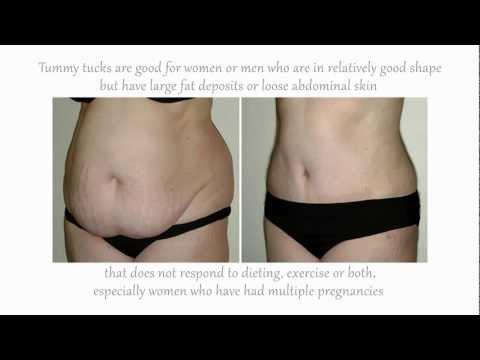 Tummy Tuck - Abdominoplasty - Plastic Surgery in Costa Rica