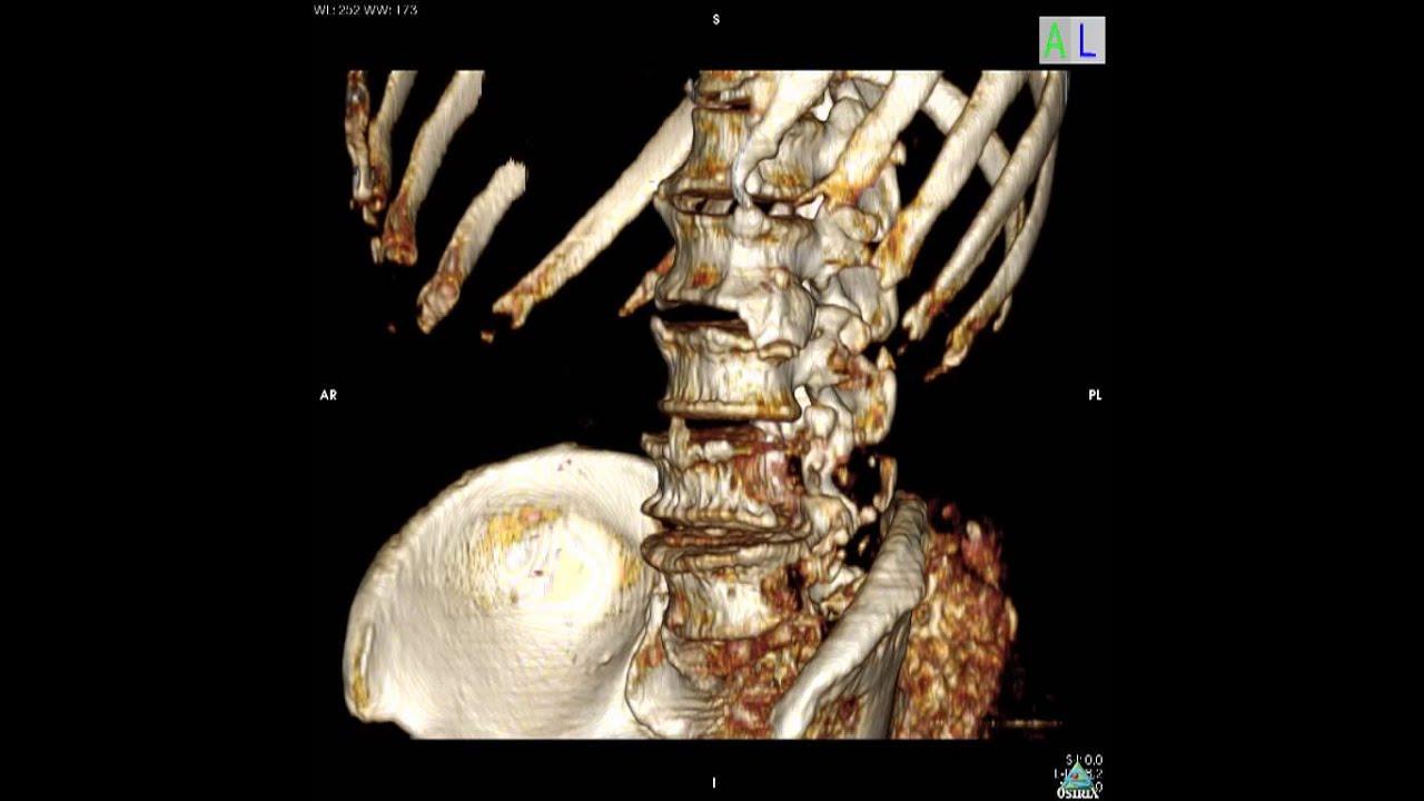 columna lumbar y pelvis 3D - YouTube