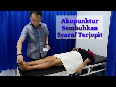 Video Pengobatan Akupuntur Untuk Syaraf Kejepit